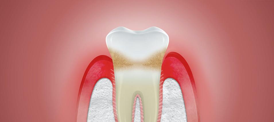 En la clínica dental SEDI somos expertos en el sangrado de las encías