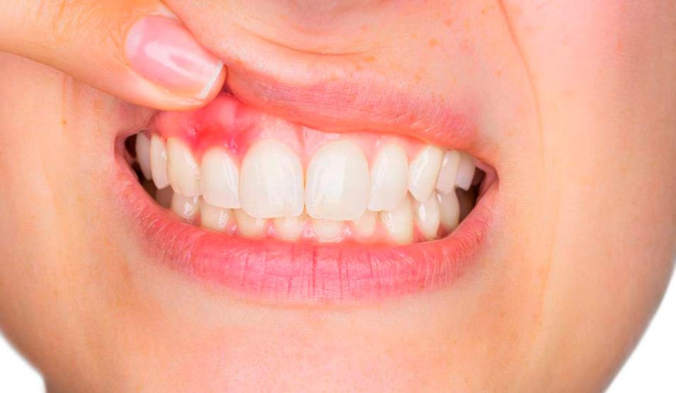 Sangrado de encías, causas y tratamientos