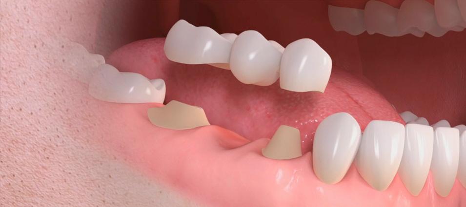 que-son-las-coronas-y-los-puentes-dentales-2
