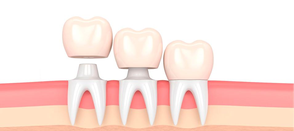 que-son-las-coronas-y-los-puentes-dentales-4