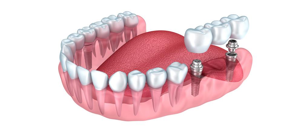 que-son-las-coronas-y-los-puentes-dentales-6
