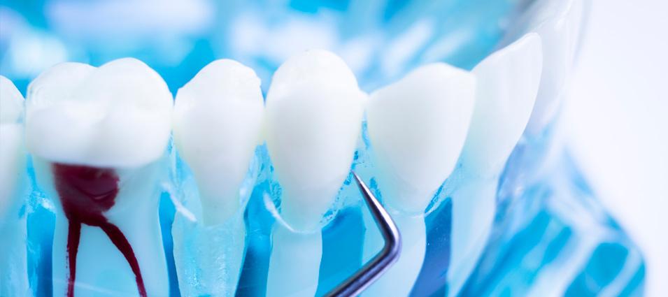 tratamiento-endodoncia-en-toledo-4