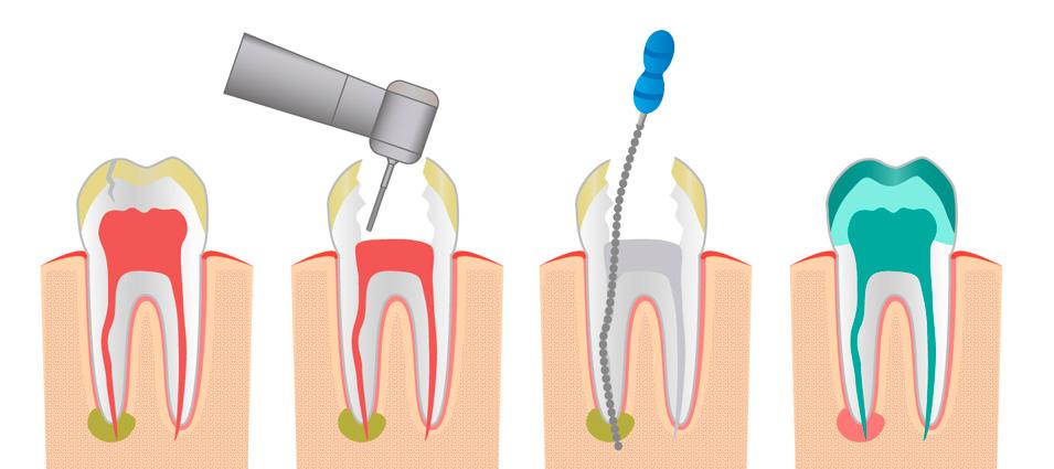 tratamiento-endodoncia-en-toledo-5