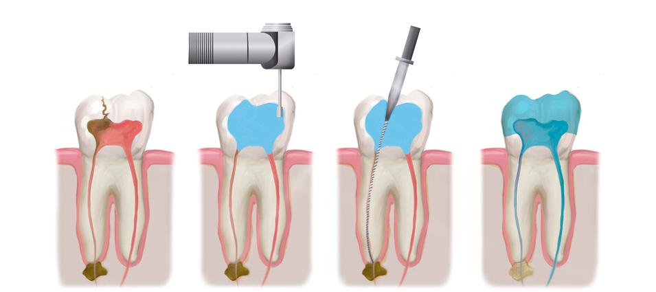 tratamiento-endodoncia-en-toledo-6