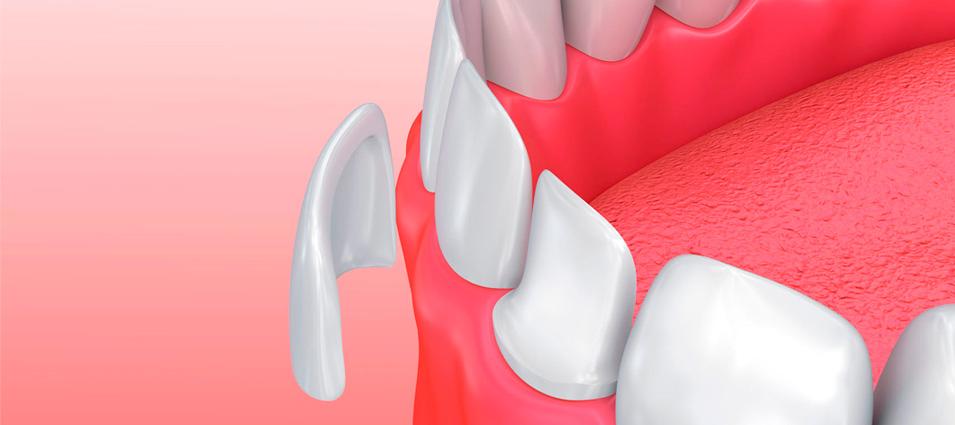 estetica-dental-carillas-dentales-en-toledo-2
