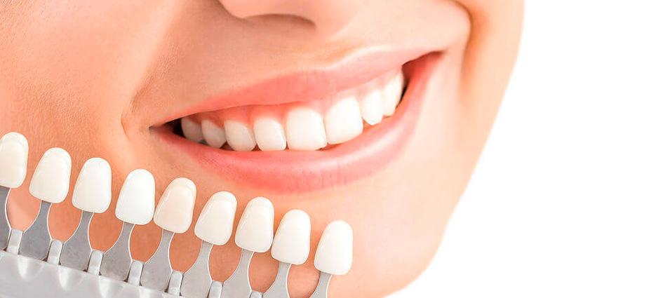 estetica-dental-carillas-dentales-en-toledo-3